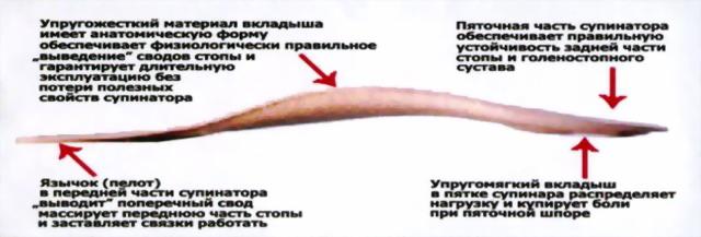 Супинированные стельки Быкова