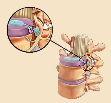 Как влияет остеохондроз грудного отдела